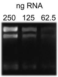 E. coli 16S, 23S RNA (250 ng  lane 1, 125 ng  lane 2, 62.5 ng  lane 3) was mixed with Formaldehyde-Free RNA Gel Loading Buffer, 2X and then resolved on a Rapid Formaldehyde-Free RNA Gel for 15 minutes at 16.5 V/cm.  The gel was immediately visualized on a UV transilluminator using a SYBR Green filter with a 500 millisecond exposure.  As little as 62.5 ng of RNA was detectable with the dye included in the kits loading buffer.